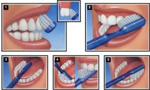 Правила ухода за зубами или всё о гигиене полости рта